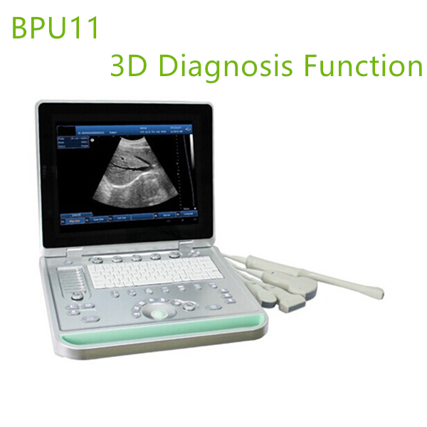 3D laptop ultrasound machines,portable ultrasound scanner,laptop echo machines,medical scan machines,usg ,ultrasound machine price.