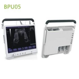 Touchscreen ultrasound machines,portable ultrasound machine price,used portable ultrasound machine,best laptop ultrasound machine,portable ultrasound factory sell directly,price from medical ultrasound,medical scan machines
