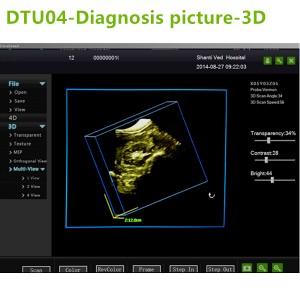 4D ultrasound Machines,4D ultrasound scanner,4d ultrasound scan machine,3D Doppler Ultrasound Machines,3D Color Trolley Ultrasound Machines,Dopper Trolley Ultrasound Machines,Trolley Ultrasound Scanner,best 3D Doppler Ultrasound Machines